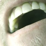 5 Common Causes of Bad Breath (And What to Do About Them)