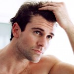 3 Things to Remember Following a Hair Transplant Treatment