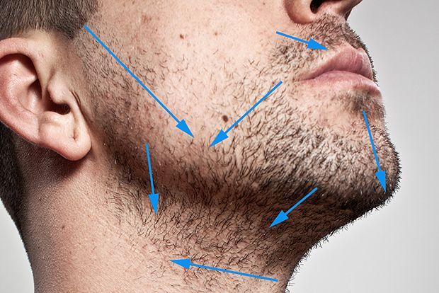 Ingrown hairs